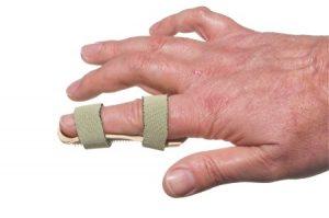 Finger injury compensation claims guide