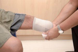 Amputation/loss of limb compensation claim guide