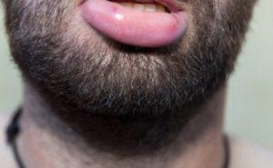 Botched dermal lip filler