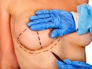 Breast augmentation compensation claims guide