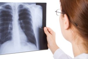 Broken rib compensation claims guide