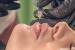 Dermal lip filler negligence compensation guide