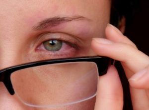 Optician negligence compensation claims guide