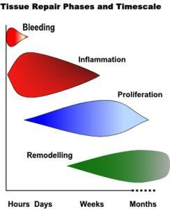 Soft tissue injury statistics