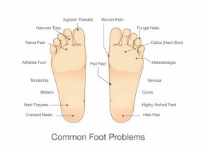 Toe injuries