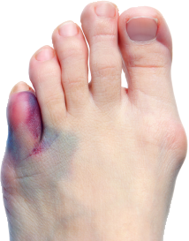 Toe injury compensation claims guide