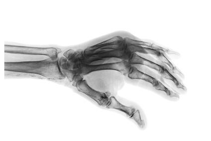 Broken hand injury compensation