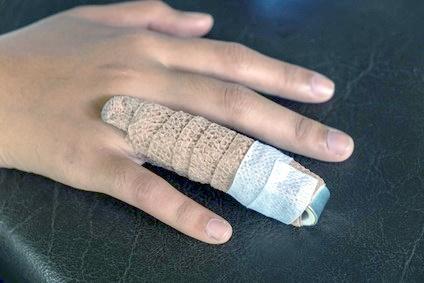 Broken ring finger injury compensation