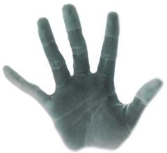 Broken thumb injury compensation