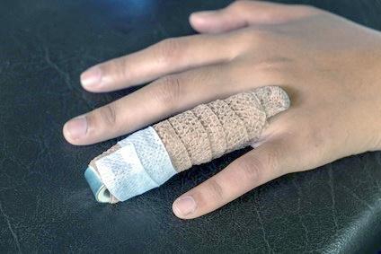 Crushed finger injuries compensation