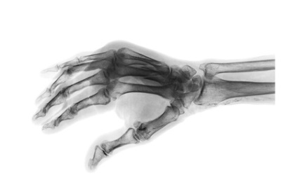 Dislocated thumb injury compensation