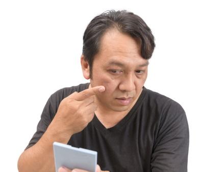 Facial scar injury compensation