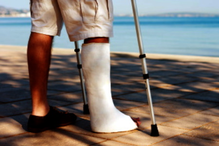 Fractured fibula injury compensation