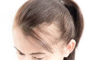 Loss of hair compensation