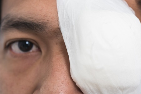 Partial blindness injury compensation